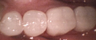 Patient 5 Teeth with tooth colored restoration