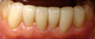 Patient 6 Fully restored bottom row of teeth