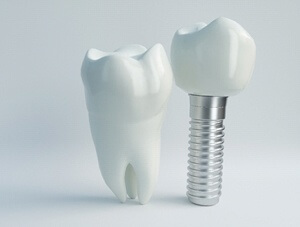 X-ray of dental implant