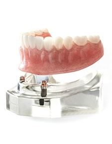 dentures model on stand