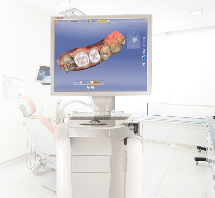 Computer with digital tooth model