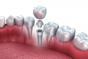 dental implant screwed into bone