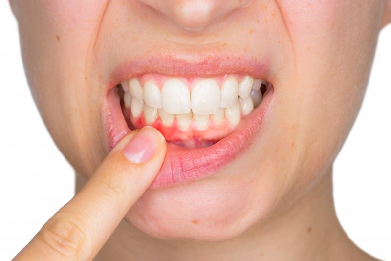 woman shows red spot on gums