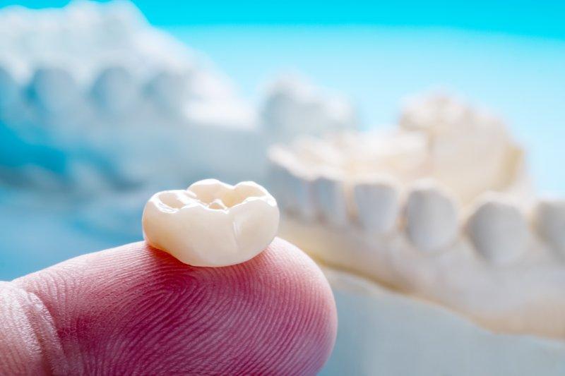 Same-day dental crown